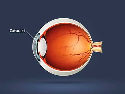 The Clear Truth About Cataracts